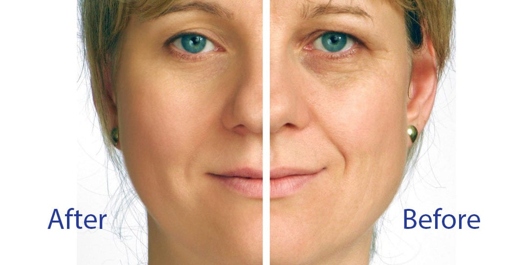 Strength Training for Your Face: The Turbo Lift