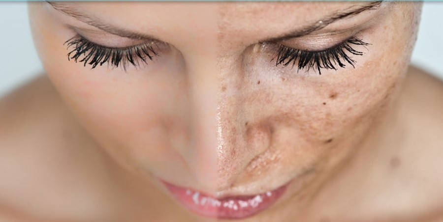 Photoaging: Solutions and Strategy for Hyperpigmentation and Sun Damaged Skin