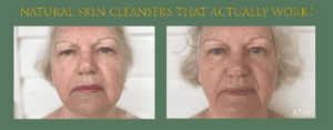 Linda Ramey Before and After Results from Sunshine Botanicals Double Cleanse process