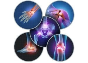 Chronic Inflammation the different type pictures